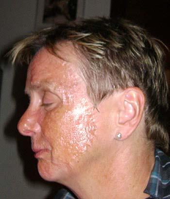 Helvedesild i ansigtet
